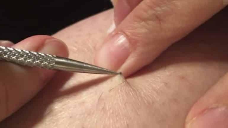 punto de sutura